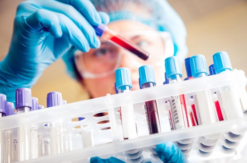 xét nghiệm Alpha 1 – antitrypsine