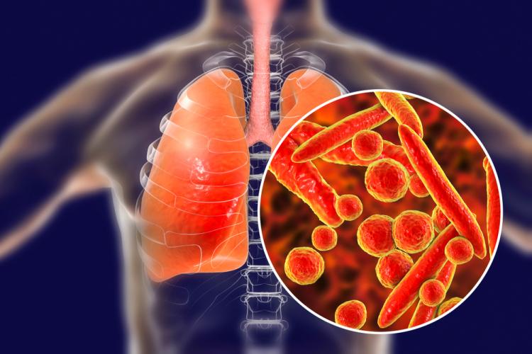 Uống thuốc sai chỉ dẫn điều trị lao phổi