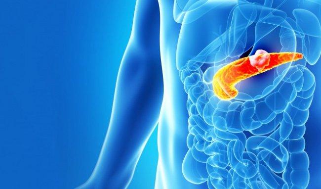 Ung thư tuyến tụy giai đoạn cuối