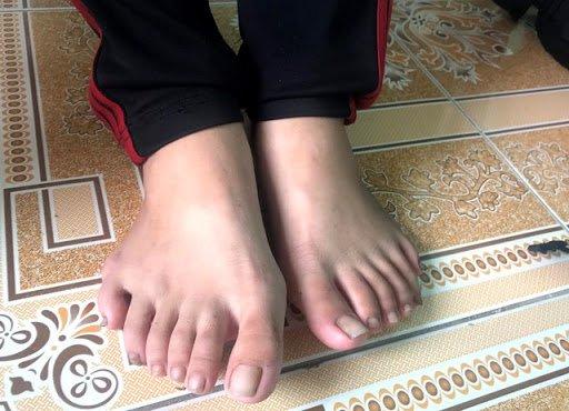 Thừa ngón chân bẩm sinh