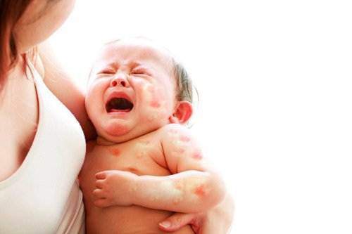 Trẻ bị dị ứng đạm sữa bò kèm nổi hạt trên mặt mẹ có cần kiêng uống sữa bò không?