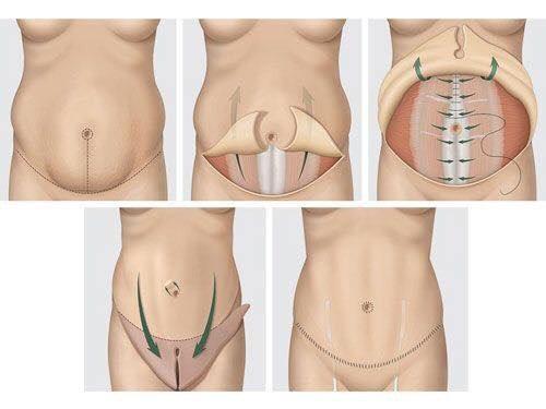 Đặc điểm của phẫu thuật tạo hình thành bụn