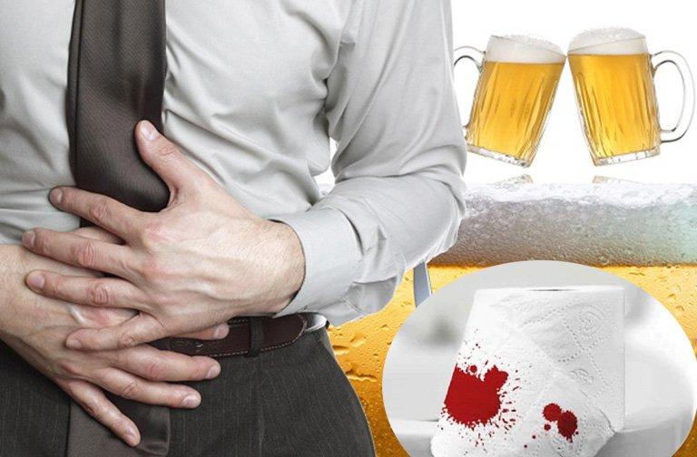 Đánh răng nôn ói kèm máu, đầy hơi sau khi uống bia rượu là dấu hiệu bệnh gì?