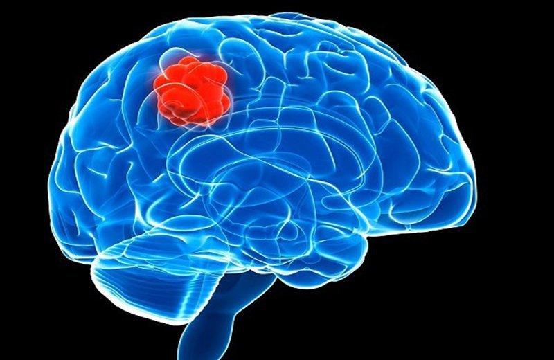 U não đã mổ tái phát gây đau đầu phải làm thế nào?