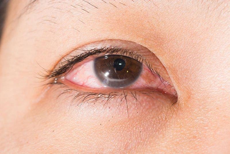 Cộm mắt khi thời tiết thay đổi và khi vận động là dấu hiệu bệnh gì?
