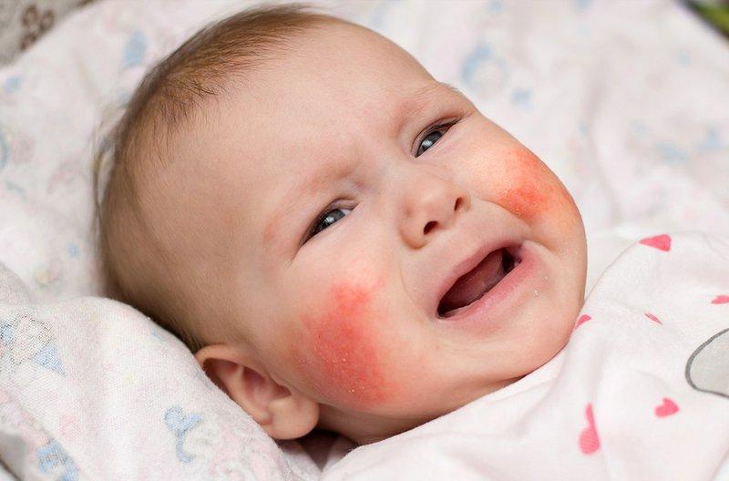 Trẻ nổi mẩn ngứa ở mặt là dấu hiệu bệnh gì?