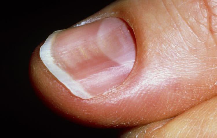 Lõm móng chân ngón cái khi mang bầu 8 tháng phải làm gì?
