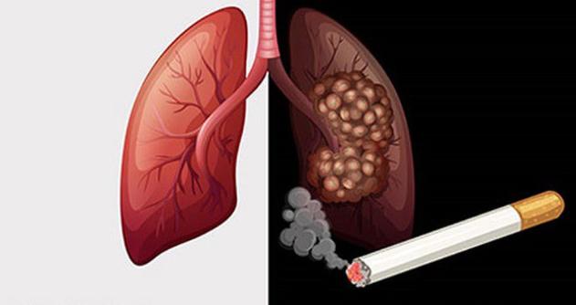 Cách ngăn chặn nguy cơ ung thư do hút thuốc lá?