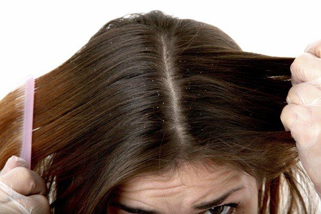 Kích thích mọc tóc