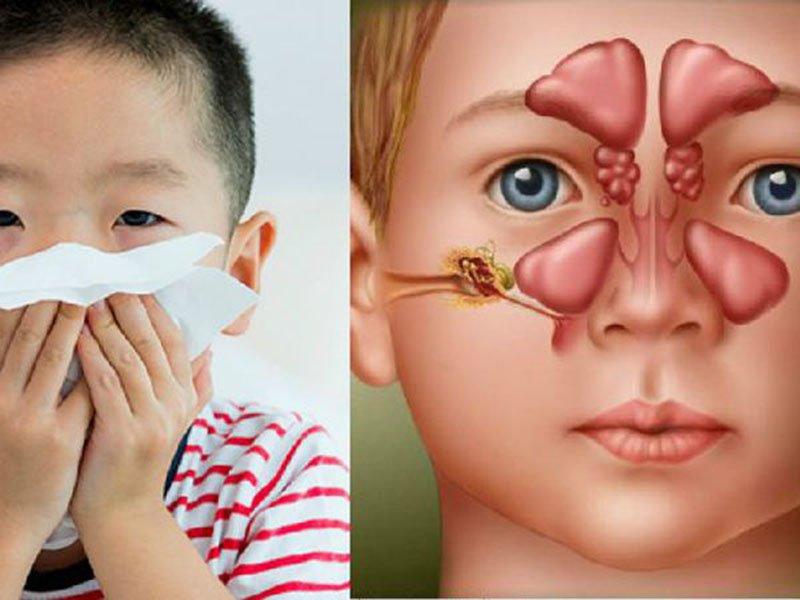 Trẻ 7 tuổi bị viêm xoang vách ngăn điều trị thế nào?