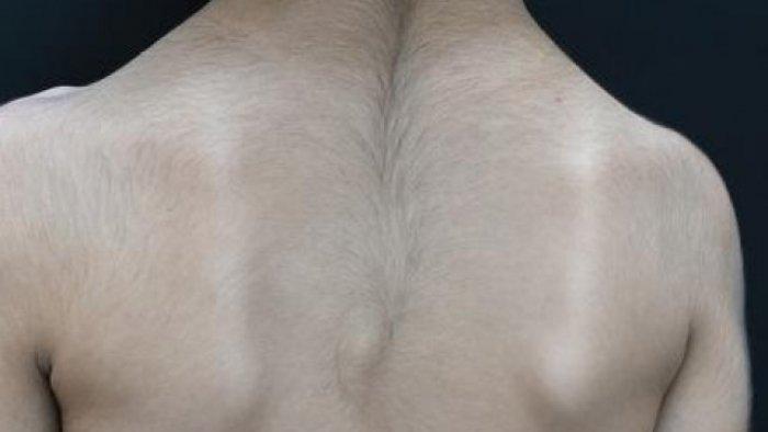Nguyên nhân mọc nhiều lông sau lưng?