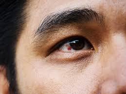 Máu bầm ở mắt có nguy hiểm không?