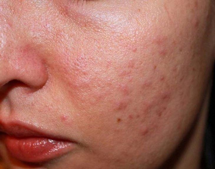 Da dễ bị ngứa kèm nổi mẩn đỏ vùng mũi, trán thuộc vùng da nào và chăm sóc thế nào?