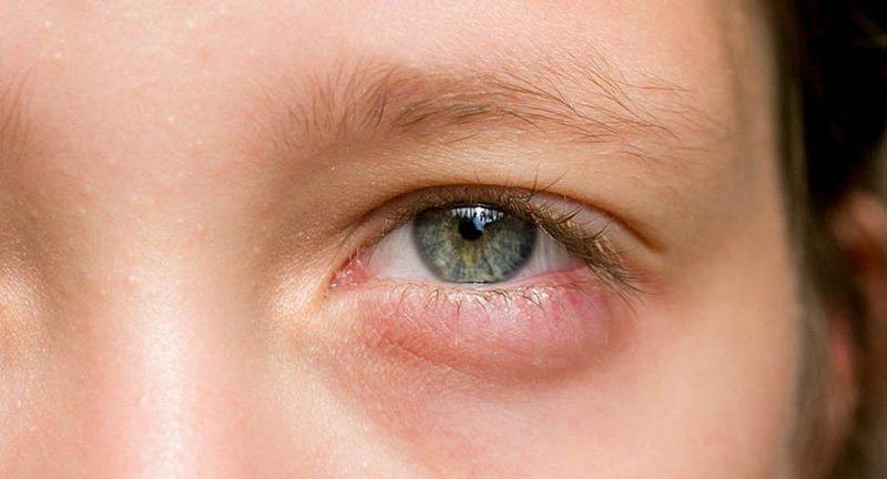 Đau vùng xung quanh mắt trái sau khi ngủ dậy là dấu hiệu bệnh gì?