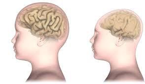Phương pháp cải thiện đầu nhỏ theo di truyền?