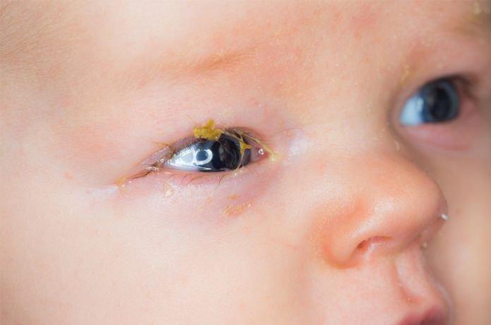 Bé 18 ngày tuổi sưng mí, có ghèn vàng ở mắt trái phải làm gì?