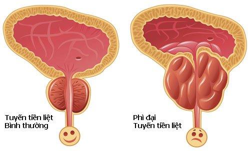 Làm thế nào để đi tiểu dễ hơn khi bị phì đại tuyến tiền liệt?
