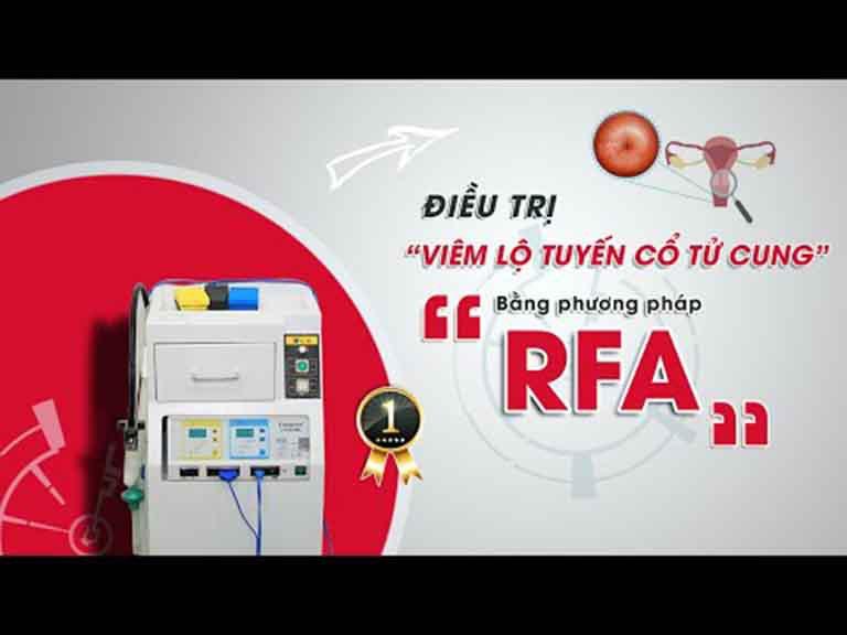 Viêm lộ tuyến cổ tử cung nhẹ có đốt được bằng sóng cao tần RFA không?