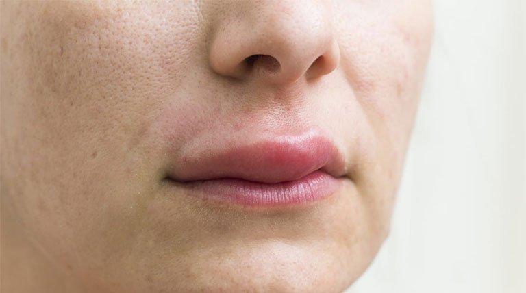 Hội chứng dị ứng miệng