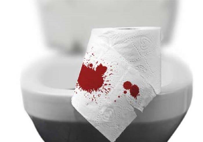 Nữ 17 tuổi đi ngoài ra máu có nguy cơ mắc bệnh gì?