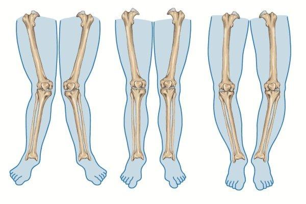 Điều trị chân cong như thế nào?