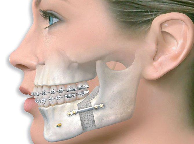 Nhiễm trùng xương hàm dưới