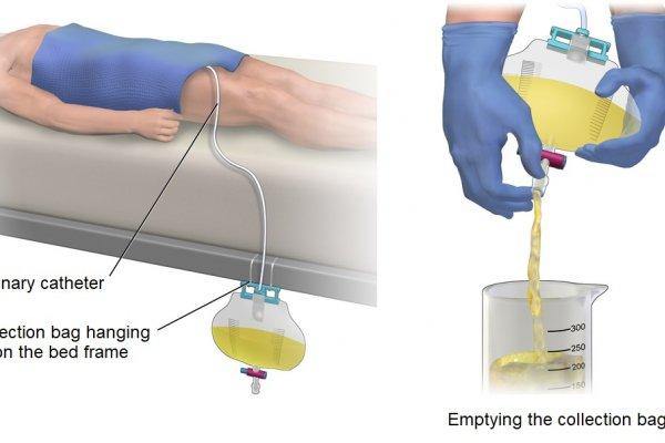 Nguyên nhân ống dẫn tiểu bị tắc là gì?