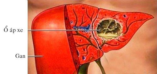 Áp xe gan Amip có chữa được không và mất bao lâu?