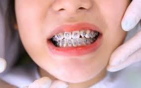 Sụt cân sau khi niềng răng