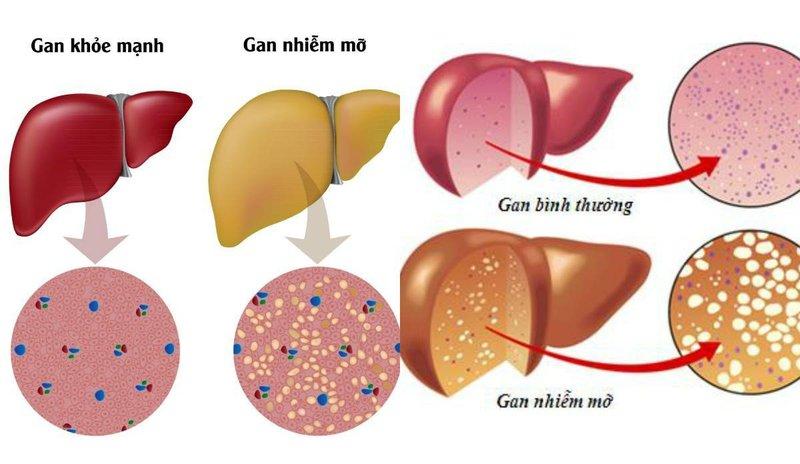 Chỉ số xét nghiệm Bilirubin tăng có phải bị gan nhiễm mỡ không?
