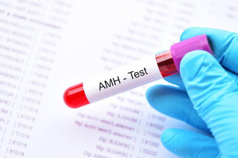 Chỉ số AMH 6,73 có phải bị buồng trứng đa nang không?