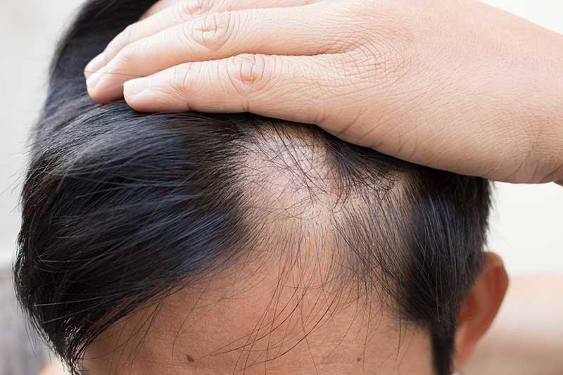 Rụng tóc có sẹo