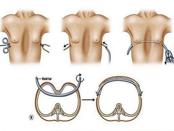 Lõm ngực từ nhỏ có thể nâng ngực không?