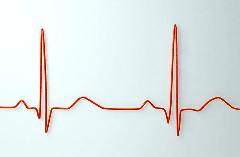 Chẩn đoán bệnh nhịp tim chậm bằng các kỹ thuật y tế nào?