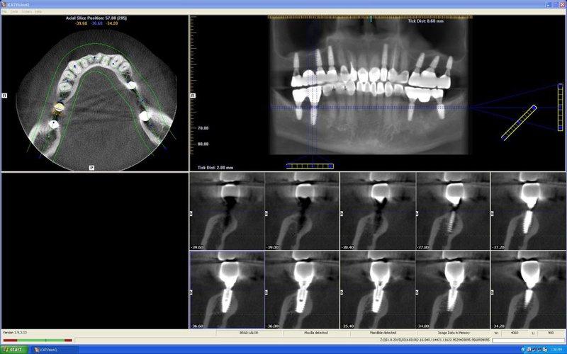 chụp X quang Cone beam CT