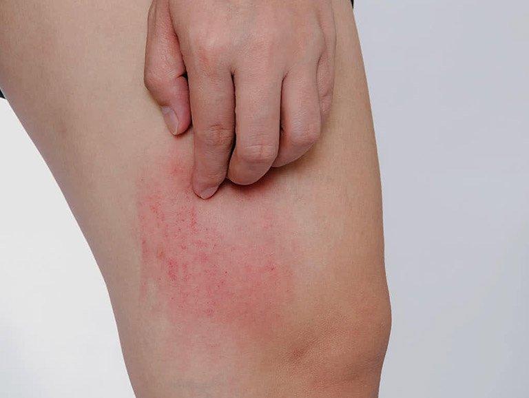 Ngứa kèm sưng vùng giữa bắp đùi phải là dấu hiệu bệnh gì?