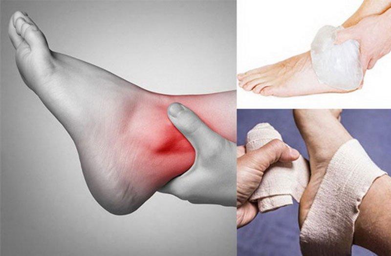 Vết thương phần mềm ở cổ chân bị sưng do ngã xe cần xử lý ra sao?