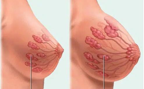 Tăng sản tuyến vú