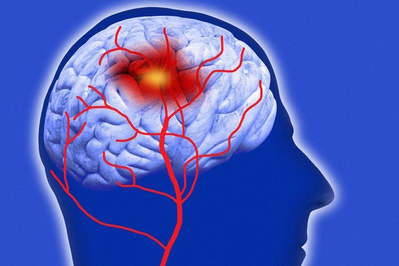 Xuất huyết thân não