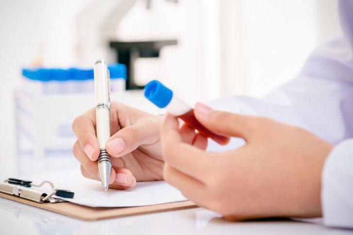 Quy trình xét nghiệm kháng thể kháng nhân ANA