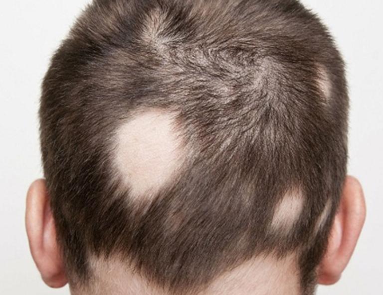 Các nguyên nhân gây rụng tóc từng mảng (alopecia areata)