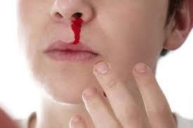 Đau mũi phải kèm chảy máu mỗi khi vệ sinh mũi là dấu hiệu bệnh gì?