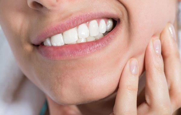 răng khôn mọc lệch hàm trên