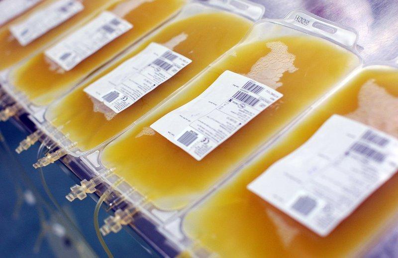 Khối tiểu cầu gạn tách được sử dụng trong chỉ định truyền tiểu cầu
