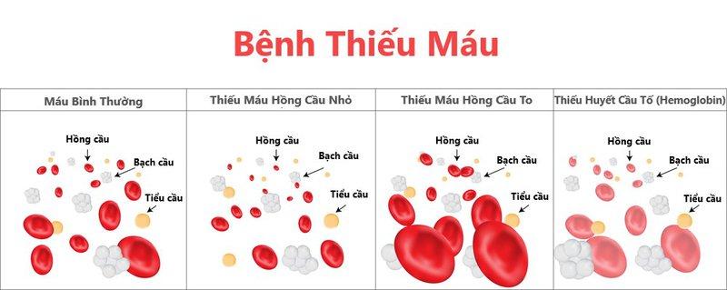 Điều trị bệnh thiếu máu do hồng cầu nhỏ như thế nào?