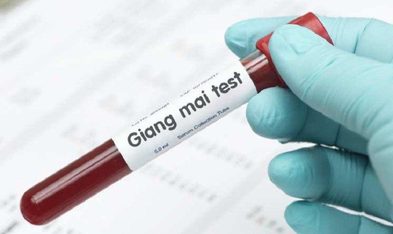 Xét nghiệm TPHA dương tính, xét nghiệm PCR âm tính thì có mắc bệnh giang mai không?