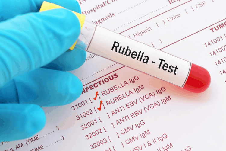 Chỉ số Rubella IgG 28.58 và Rubella IgM 0.141 trong xét nghiệm máu có nghĩa gì?