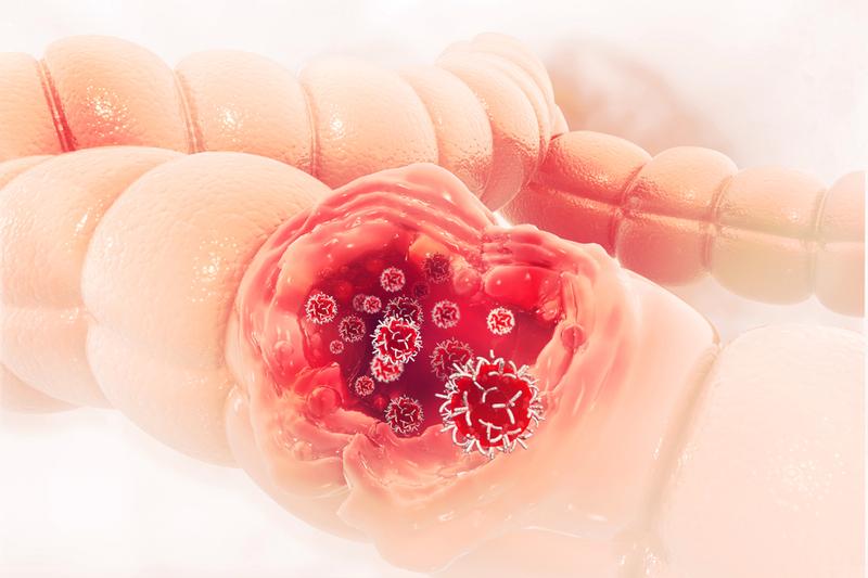 carcinoma ung thư tuyến đại tràng xâm nhập