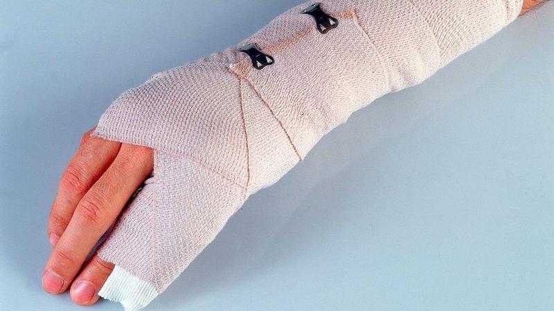 Thâm đầu ngón tay sau bó bột có sao không?