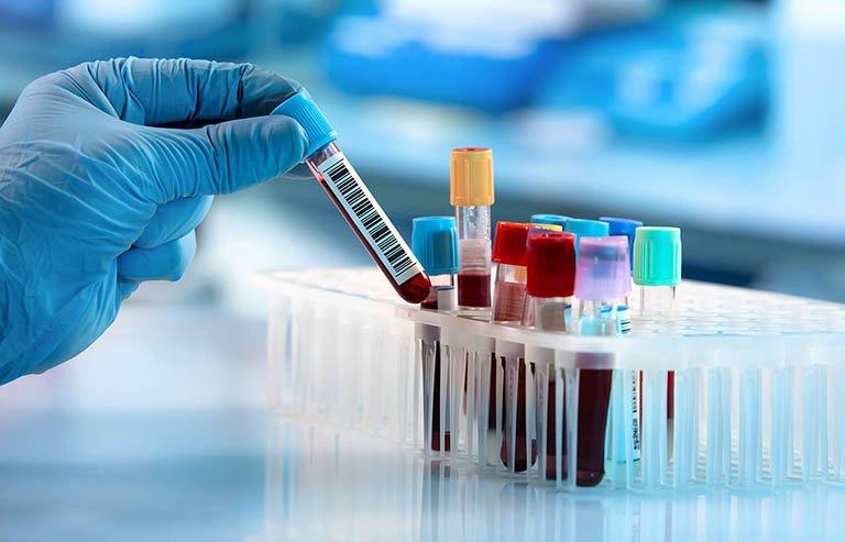 Chỉ số AST và ALT như thế nào thì có bệnh lý về gan?
